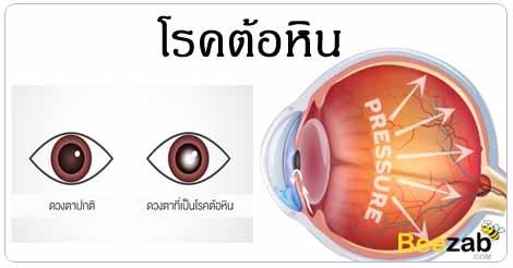 ต้อหิน โรคตา โรคไม่ติดต่อ รักษาตาต้อ