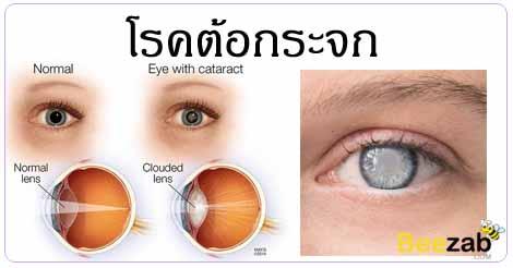 ต้อกระจก โรคตา มองไม่ชัด รักษาโรคตา