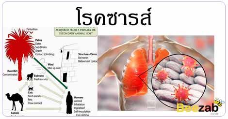 โรคซาร์ส ปอดติดเชื้ออย่างรุนแรง โรคทางเดินหายใจ โรคติดต่อ