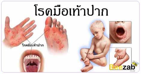 โรคมือเท้าปาก โรคปากเปื่อยเท้าเปื่อย โรคติดเชื้อ โรคติดต่อ