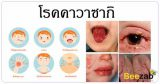 หัดญี่ปุ่น โรคคาวาซากิ โรคเด็ก โรคติดเชื้อ