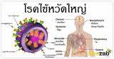 ไข้หวัดใหญ่ โรคติดเชื้อ โรคติดต่อ รักษาไข้หวัดใหญ่