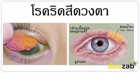 ริดสีดวงตา โรคตา หนังตาติดเชื้อ โรคติดเชื้อ