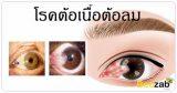 ต้อเนื้อ ต้อลม โรคตา โรคดวงตา