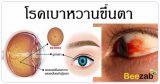 เบาหวานขึ้นตา โรคตา โรคเบาหวาน