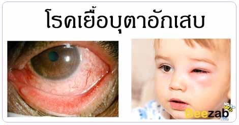 เยื่อบุตาอักเสบ โรคตา เยื่อบุตาติดเชื้อ