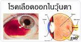 เลือดออกในวุ้นตา โรคตา โรคไม่ติดต่อ