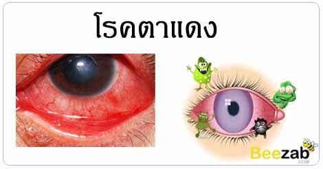 โรคตาแดง ดวงตาอักเสบ โรคตา โรคติดต่อ