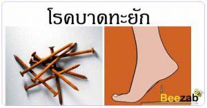 บาดทะยัก โรคติดเชื้อ แผลจากสนิม