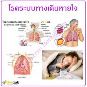 โรคระบบทางเดินหายใจ โรคทางเดินหายใจ โรค โรคต่างๆ