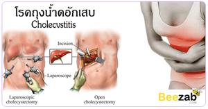 โรคถุงน้ำดีอักเสบ โรคติดเชื้อ โรคในช่องท้อง โรคระบบทางเดินอาหาร