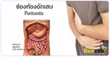 ช่องท้องอักเสบ เยื่อบุท้องอักเสบ โรคระบบทางเดินอาหาร โรคไม่ติดต่อ