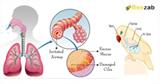 โรคแอสเปอร์จิลโลซิส Aspergillosis โรคติดต่อ โรคติดเชื้อ
