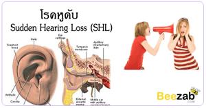โรคหูดับ โรคหูดับเฉียบพลัน โรคหู ไม่ได้ยินเสียง