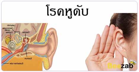 โรคหูดับ โรคหู โรคไม่ติดต่อ โรคติดเชื้อ