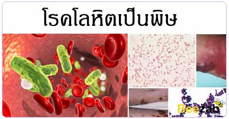 โลหิตเป็นพิษ ติดเชื้อในกระแสเลือด โรคเลือด