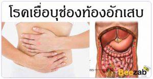 เยื่อบุช่องท้องอักเสบ โรคในช่องท้อง โรคระบบทางเดินอาหาร