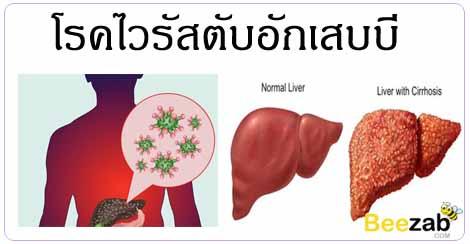 ไวรัสตับอักเสบ โรคติดเชื้อ โรคติดต่อ โรคตับ