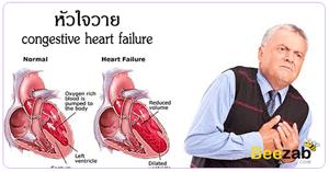 หัวใจวาย ภาวะหัวใจวาย โรคหัวใจ เจ็บหน้าอก