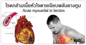 กล้ามเนื้อหัวใจตายเฉียบพลัน โรคหัวใจ โรคเกี่ยวกับหัวใจ โรคไม่ติดต่อ