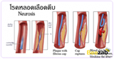 หลอดเลือดตีบ ไขมันอุดตันในเส้นเลือด โรคหลอดเลือด โรคไม่ติดต่อ