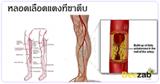 หลอดเลือดที่ขาตีบ โรคหลอดเลือด โรคไม่ติดต่อ