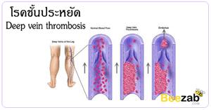 โรคชั้นประหยัด โรคหลอดเลือดดำส่วนลึกอุดตัน โรคหลอดเลือด โรคไม่ติดต่อ