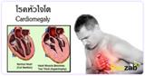 โรคหัวใจโต โรคหัวใจ ภาวะหัวใจโต