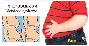 โรคอ้วนลงพุง ภาวะอ้วนลงพุง โรคอ้วน การลดความอ้วน