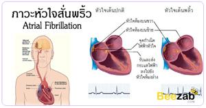 หัวใจสั่นพริ้ว โรคหัวใจ โรคไม่ติดต่อ โรคหัวใจเต้นสั่นพริ้ว