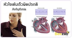 หัวใจเต้นเร็วผิดปรกติ หัวใจเต้นเร็ว โรคหัวใจ รักษาโรคหัวใจเต้นเร็ว