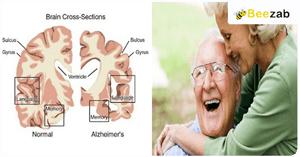 ความจำเสือม อัลไซล์เมอร์ โรคสมอง โรคความจำ