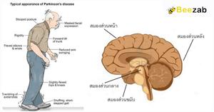 โรคสมอง โรคระบบประสาท โรคพาร์กินสัน พาร์กินสัน