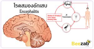โรคสมองอักเสบ โรคสมอง โรคติดเชื้อ ภาวะสมองอักเสบ