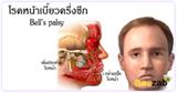 โรคหน้าเบี้ยวครึ่งซีก โรคหน้าเบี้ยว โรคระบบประสาท โรคอัมพาต์เบล