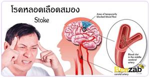 โรคหลอดเลือดสมอง โรคสมอง โรคหลอดเลือด โรคไม่ติดต่อ