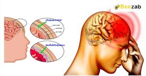 เยื่อหุ้มสมองอักเสบ โรคสมอง โรคติดเชื้อ