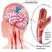 ภาวะสมองขาดเลือด โรคระบบสมอง โรคระบบประสาท
