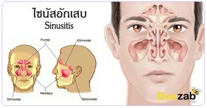 ไซนัสอักเสบ โรคในโพรงจมูก โรคหูคอจมูก โรคระบบทางเดินหายใจ