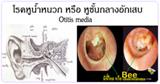 โรคหูน้ำหนวก โรคหูชั้นกลางอักเสบ โรคหู โรคหูคอจมูก