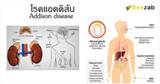 โรคแอดดิสัน โรคต่อมหมวกไต โรคฮอร์โมน โรคไม่ติดต่อ