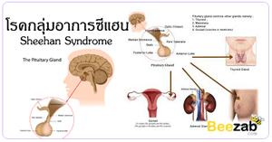 กลุ่มอาการซีแฮน โรคต่อมใต้สมอง โรคต่อมไร้ท่อ ภาวะขาดฮอร์โมนหลังจากคลอดลูก