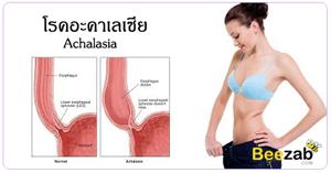 โรคอะคาเลเซีย โรคระบบทางเดินอาหาร กินข้าวไม่ได้ โรคไม่ติดต่อ