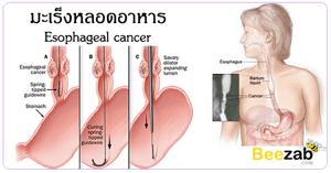 มะเร็งหลอดอาหาร โรคมะเร็งหลอดอาหาร โรคมะเร็ง โรคไม่ติดต่อ