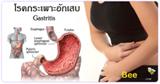 โรคกระเพาะอักเสบ โรคระบบทางเดินอาหาร โรคไม่ติดต่อ ปวดท้อง