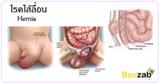โรคไส้เลือน โรคระบบทางเดินอาหาร โรคลำไส้ โรคไม่ติดต่อ