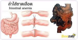 ลำไส้ขาดเลือด ไส้เน่า โรคระบบทางเดินอาหาร โรคไม่ติดต่อ