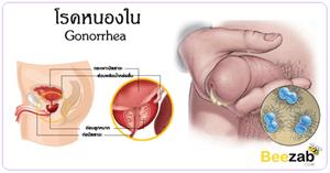 โรคหนองใน หนองใน โรคติดต่อทางเพศสัมพันธ์ โรคติดเชื้อ