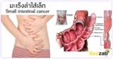มะเร็งลำไส้เล็ก โรคระบบทางเดินอาหาร โรคมะเร็ง เนื้อร้าย