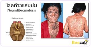 โรคท้าวแสนปม โรคผิวหนังผิดปกรติ โรคไม่ติดต่อ สาเหตุของโรคท้าวแสนปม
